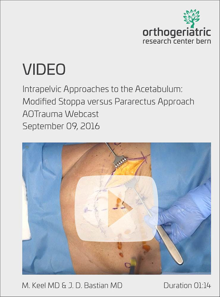 Intrapelvic Approaches to the Acetabulum
